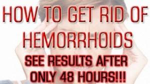Get Rid of Hemorrhoid Natural